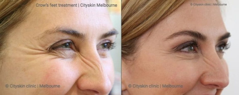 Anti Wrinkle Injection Effects | Beffore and After Photos