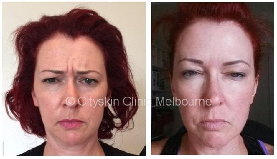Anti Wrinkle Injections effect | Before an After Photos
