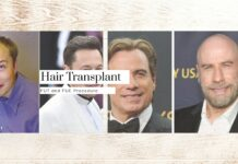 Hair Transplant Timeline - Collage Photo