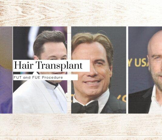 Hair Transplant Timeline - Collage Photo
