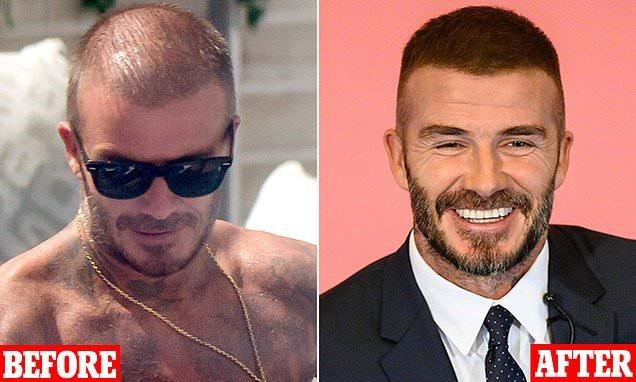 David Beckham - Before and After