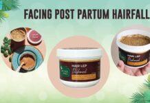 Post Partum Hair Fall