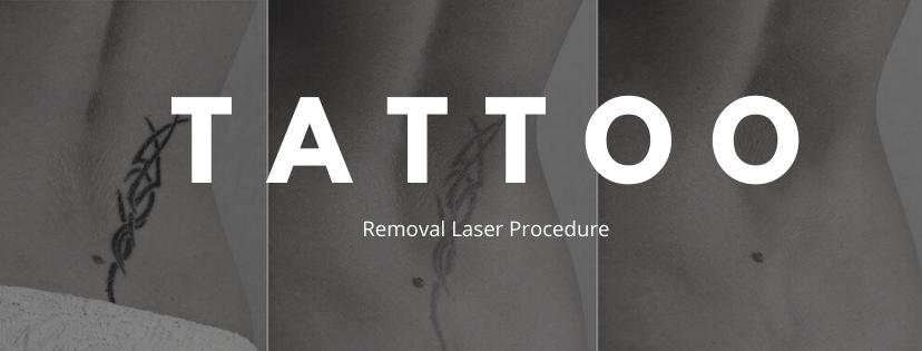 tattoo removal laser procedure