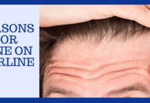 Reasons for Acne On Hairline